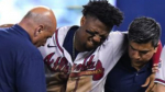 Braves Season Over Without Acuna? – BY BUCK BELUE