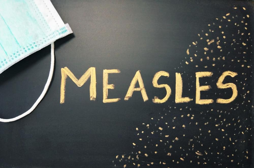 Measles Outbreak Has Reached a High of 695 Cases Across 22 States