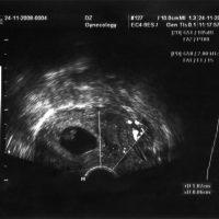 ultrasound fetus portrait