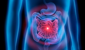 Body with stomach and colon problem