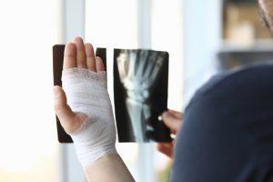 Male bandaged hand holds xray image closeup
