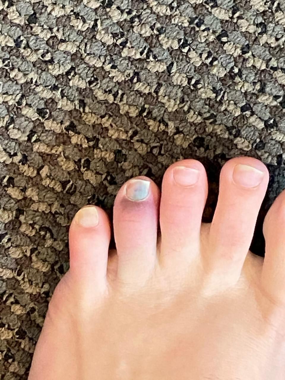 Did I  Break My Toe?