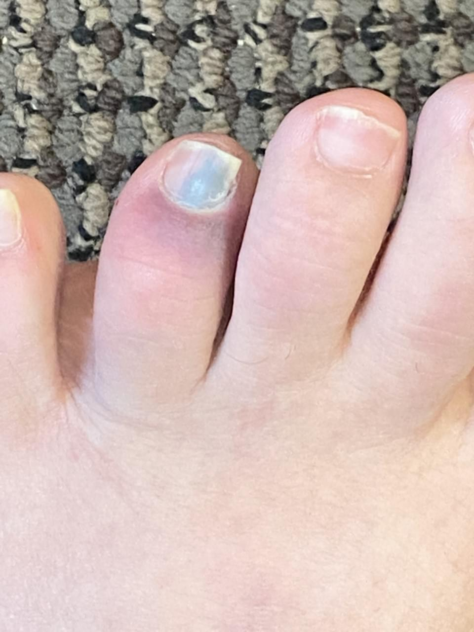 Jay's Toe Update…My Toenail Is About To Fall Off!