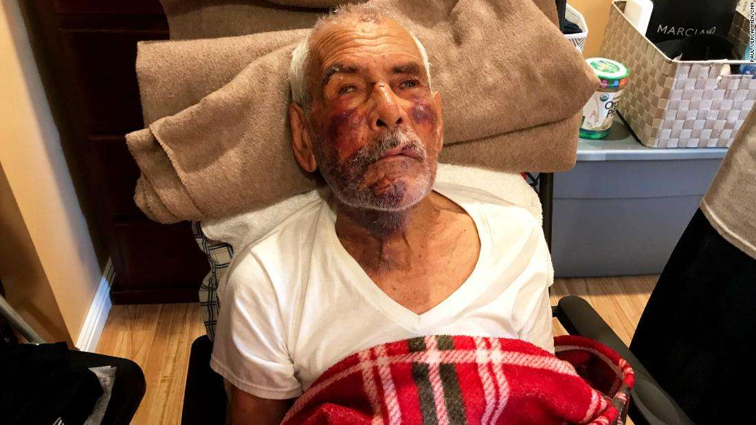 91-year-old man beaten with brick, told 'go back to your own country'